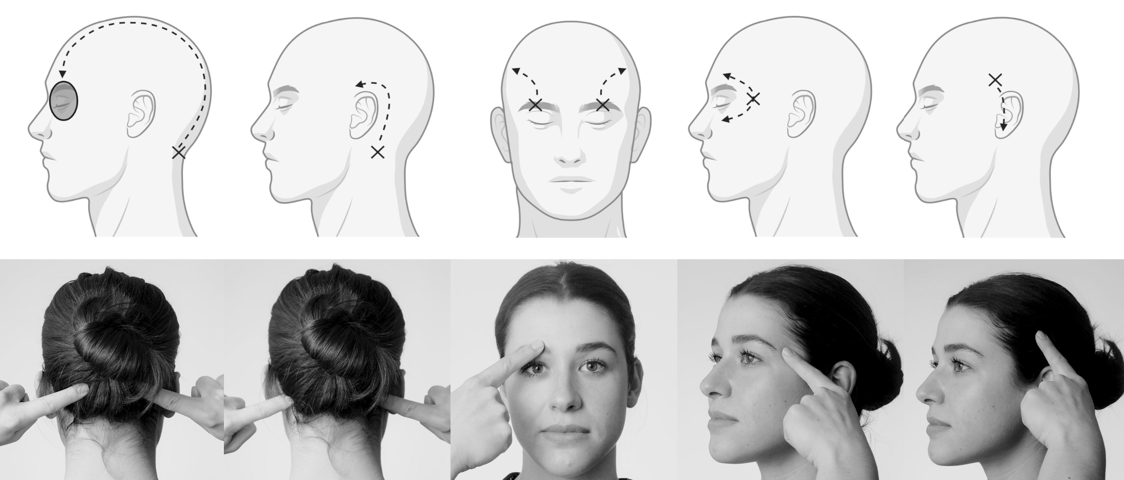 Illustratie waarop staat op welke plekken hoofdpijn door beknelde zenuw ontstaat