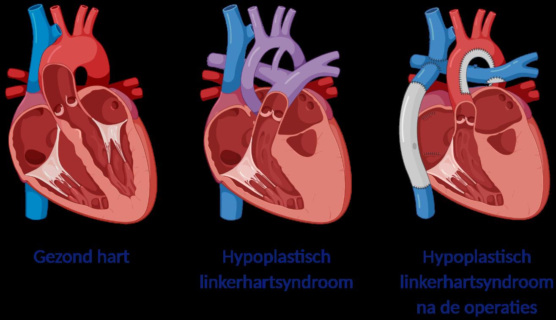 Hypoplastisch linkerhartsyndroom