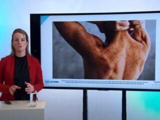 Elk jaar krijgen 70.000 Nederlanders de diagnose huidkanker